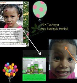 Testimony VCO Sembuhkan Luka Pada Anak